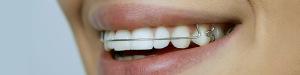 Stomatologia Dentica Józefosław - Slider 2